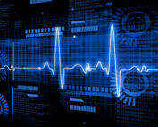 Medical diagnostic display with ECG technology on blue background.